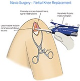 Nivo Incision Illustration